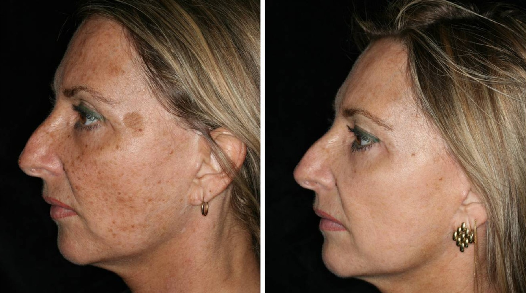 laser facial procedures slc utah