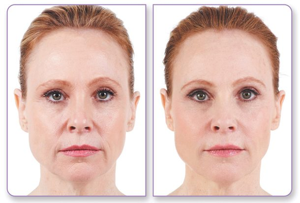 before and after the juvederm procedure