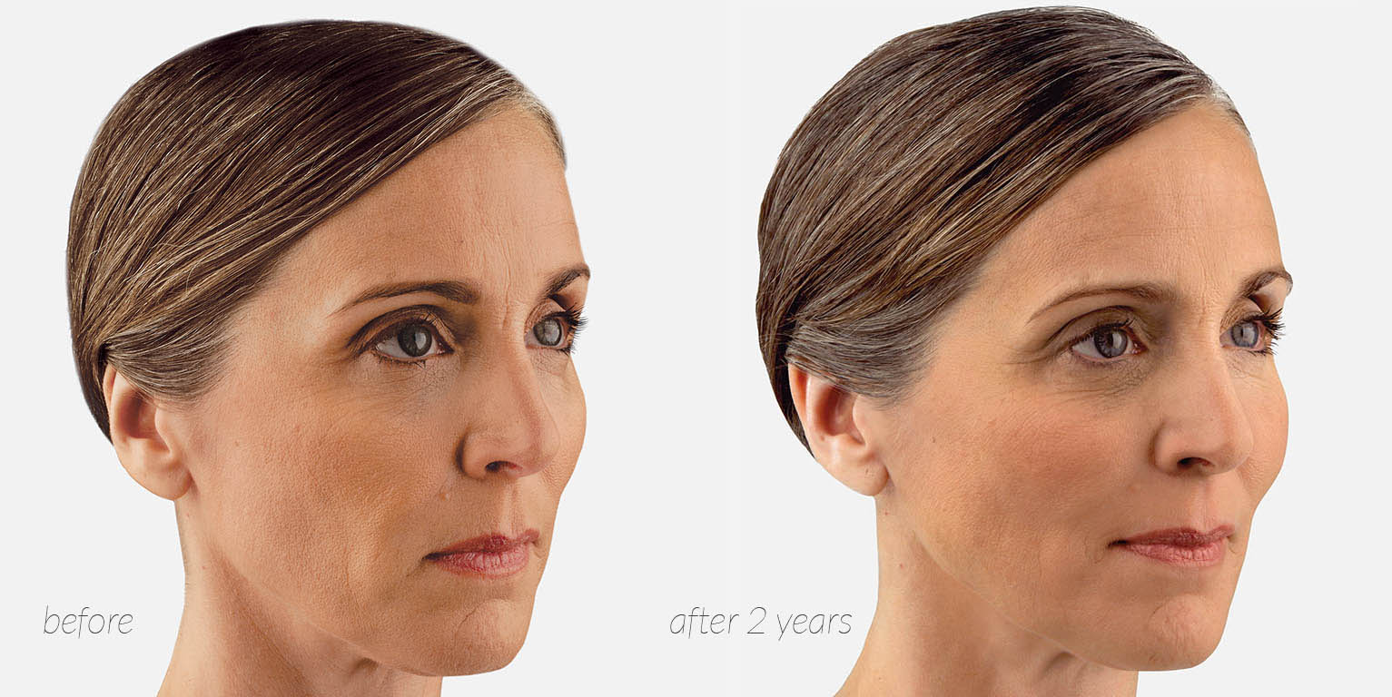 before and after juvederm voluma
