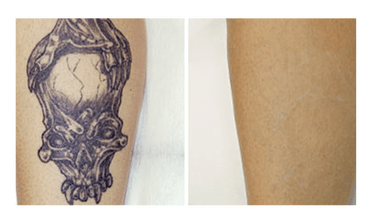 Laser Tattoo Removal Salt Lake City | Steven Jepson, M.D