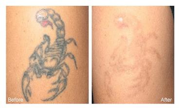 Laser tattoo removal salt lake city steven jepson m d for Saline tattoo removal