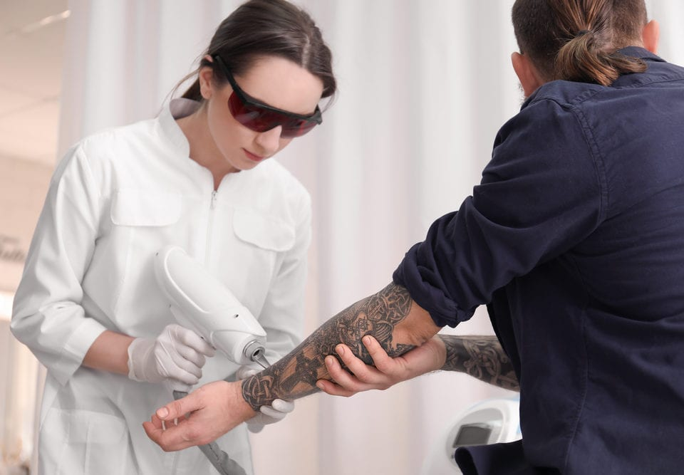 preparing tattoo removal appointment