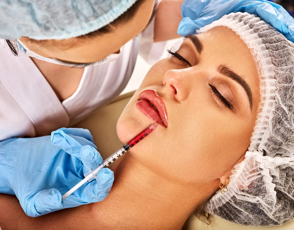 misconceptions dermal fillers lips