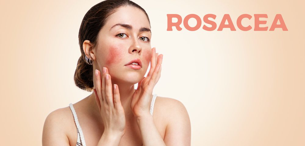 avoidance themes rosacea symptoms